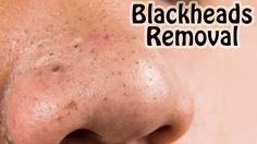 Microdermabrasion has made the reputation of greatly benefiting the skin and offering a more vibrant look. Have you considered this treatment? Face Skin Care, Diy Skin Care, Skin Care Tips, Remove Blackheads From Nose, Face Mask For Blackheads, Deep Blackheads, Best Acne Remedies, Skin Care Remedies, Blackhead Remedies