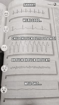 tutte le volte viene un infarto a me quando leggo un ecg così Ems Humor, Medical Humor, Nurse Humor, Medical Assistant, Paramedic Humor, Funny Medical, Physician Assistant, Ecards Humor, Nursing Tips