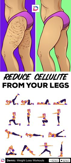 Reduce Cellulite From Your Legs - Fitness Cellulite Cream, Reduce Cellulite, Anti Cellulite, Cellulite Remedies, Easy Workouts, Fitness Workouts, Butt Workout, Excercise, Thighs