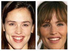 Jennifer Garner Plastic Surgery Before and After Lips Photos - Celebrity Plastic Surgery Before and After