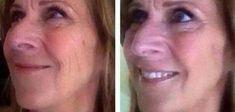 Just How Do Face Aerobics Exercises Restore For Anti-Aging Skin Care, Tautening Sagging Skin, And Removing Creases?