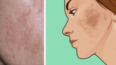 Sagging Skin Remedies Suffer from melasma? Here are 6 natural ways to treat the skin discoloration Dark Patches On Skin, Skin Peeling On Face, Sagging Skin, Skin Discoloration Face, Skin Care Remedies, Health Remedies, Dark Skin, Beauty Secrets, Diy Beauty
