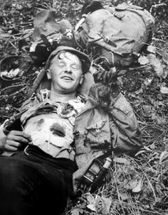 A Finnish soldier wounded by a Soviet sniper smiles for a photograph during the Finnish-Soviet Continuation War. Karelia, 1942.