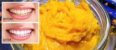 3-ingredient Homemade Toothpaste With Turmeric to Whiten Teeth and Reverse Gum Disease
