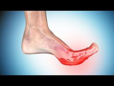 Foot Cramps or Toe Cramps can come on out of the blue and cause excruciating pain. It affects the arch of the foot and the big toes. Know The Causes, Symptoms, Treatment and Ways to Get Rid of Foot Cramps. Leg Cramps Causes, Leg And Foot Cramps, Leg Cramps At Night, What Causes Arthritis, Rheumatoid Arthritis Treatment, Cramp Remedies, Health Remedies, Leg Pain