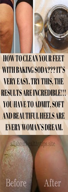 HOW TO CLEAN YOUR FEET WITH BAKING SODA??? IT'S VERY EASY. TRY THIS, THE RESULTS ARE INCREDIBLE!!! YOU HAVE TO ADMIT, SOFT AND BEAUTIFUL HEELS ARE EVERY WOMAN'S DREAM. #How #to #clean #feet #BakingSoda Baking Soda Health, Soup Cleanse, Foot Detox, Foot Soak, Beautiful Heels, Diy Products, Anti Aging Tips, Foot Care, Natural Home Remedies