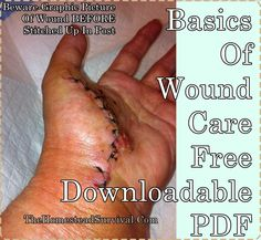 This is a great download of the basics for wound care that details all the proper steps for healthy recovery of injury. It will help folks to evaluate any