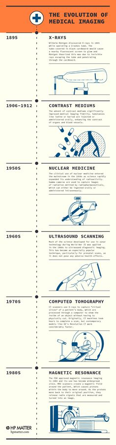 The History of Medical Imaging Technology: Ultrasounds and MRI Scanners | HP
