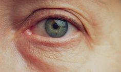 Ako odstrániť vačky pod očami? Toto funguje! Beauty, Beauty Illustration