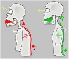 Temporomandibular joint syndrome (tmj syndrome)