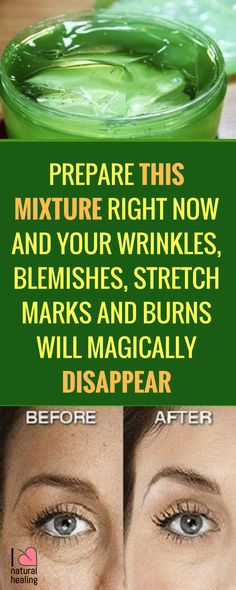 This amazing mixture is perfect for removing stretch marks very quickly. The other great thing about this mixture is that it's preparation is very easy, you can make it at your home and you can save a lot of money. Also we should mentioned that this mixture is 100% natural, and has no side effects!