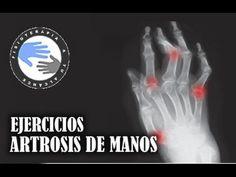 Artrosis de manos, ejercicios y fisioterapia para aliviar el dolor