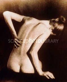 M3820272-Posterior_view_of_naked_woman_with_back_pain-SPL.jpg (286×350)