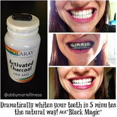 You can D R A M A T I C A L L Y whiten your teeth in 5 MINUTES with Activated Charcoal!