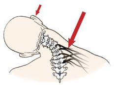 Overstretched nerves and connective tissue cause the brain to layer the area with protective spasm that may lead to contractures.