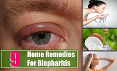 9 Home Remedies For Blepharitis | http://www.searchhomeremedy.com/9-home-remedies-for-blepharitis/