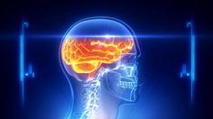 Human head x-ray scan - HD stock video clip