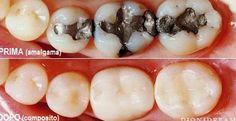 Cosa fare per togliere l'amalgama tossica- La lista dei dentisti con rimozione protetta - http://www.sostenitori.info/cosa-fare-per-togliere-lamalgama-tossica-la-lista-dei-dentisti-con-rimozione-protetta/235851