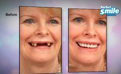 Get a million dollar smile for only $19.99. PerfectSmileTeeth.com #perfectsmile #perfectsmiles #veneer #veneers #denture #dentalwork #milliondollarsmile by thrillstreet Our Dental Veneers Page: http://www.lagunavistadental.com/services/cosmetic-dentistry/veneers/ Other Cosmetic Dentistry services we offer: http://www.lagunavistadental.com/services/cosmetic-dentistry/ Google My Business: https://plus.google.com/LagunaVistaDentalElkGrove/about Our Yelp Page…