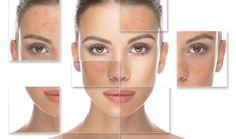 Sytá červeň ve tváři není zejména pro ženy vítaným jevem. Rozšířené cévy a začervenání kůže na obličeji při rosacee přinášejí pacientům různá omezení a mimo jiné velkou psychickou zátěž.