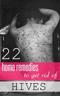 Hives are an allergic reaction that take the form of itchy red bumps or welts on the skin.Here are top 22 home remedies to get rid of hives fast. Natural Remedies For Hives, Home Remedies For Hives, Hives Remedies, Skin Tags Home Remedies, Homeopathic Remedies, Skin Care Remedies, Eczema Remedies, Health Remedies, Allergy Hives