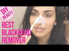 Toothbrush Blackhead Remover, Best Ever Method To Get Rid Of Blackheads. Does Toothpaste Get Rid Of Pimples Pimples On Chin, Pimples On Forehead, How To Get Rid Of Pimples, Get Rid Of Blackheads, Best Blackhead Remover, Home Remedies For Pimples, Unclog Pores, Stress, Partys