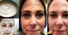 Receita de botox caseiro para o rosto: rejuvenesce e elimina rugas rápido Natural Hair Mask, Acne And Pimples, Les Rides, Wrinkle Remover, Face Cleanser, Tricks, Health And Beauty, Beauty Hacks, Skin Care