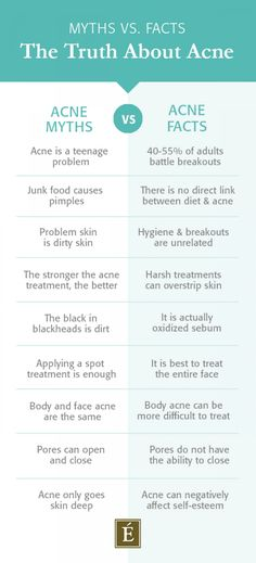What you think you know about adult is probably less fact, more fiction. Here are ten myths about breakouts - busted. ---- tips acne The Truth About Acne-Prone Skin Acne Skin, Acne Prone Skin, Oily Skin, Acne Face, Organic Skin Care, Natural Skin Care, Organic Beauty, Back Acne Treatment, Acne Treatments