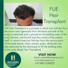 #Best_Hair_Transplant #Advance_Hair_Treatment  Say Goodbye to Your Hair Loss Worries.  Visit http://www.hairnsenses.co.in/ for FREE CONSULTATION and OFFERS On Hair Transplant