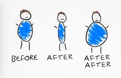 3 Top Reasons For Regain After Weight Loss Surgery - Support - Weight Loss Surgery Magazine - Magazine - BariatricPal Easy Weight Loss Tips, Weight Loss Goals, Fast Weight Loss, Bariatric Eating, Bariatric Surgery, Bariatric Recipes, Start Losing Weight, Lose Weight, Pouch Reset