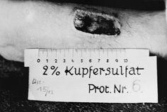 Mientras tanto, en Alemania: brazo de una víctima de los experimentos con quemaduras de fósforo en el campo de concentración de Ravensbrück, nótese la regla colocada junto a la herida para tomar nota de su longitud, noviembre de 1943