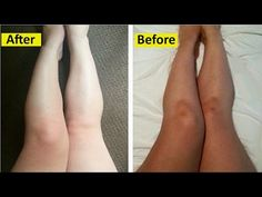 How to Lighten Body Skin Color in 3 Days : Legs, Hands & Neck - YouTube