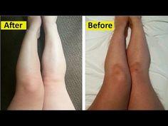 How to Lighten Body Skin Color in 3 Days : Legs, Hands & Neck - YouTube