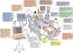Visuals are always nice. This one explains what each medical/technical/tube contraption is within the surroundings of a hospital bed. The child can learn the names and become familiar with what each medical or technical use is had from all equipment. Nursing Mnemonics, Icu Nursing, Nursing Career, Nursing Notes, Nursing Diagnosis, Funny Nursing, Nursing School Tips, Nursing Tips, Way Of Life