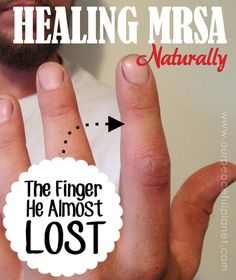 MRSA has been the cause of many lost body parts for people. It's a dangerous flesh eating staph infection that cannot be cured in most cases. My son went to the ER and found he had it in his finger. They could do nothing and wanted to send him to a hand surgeon. Meaning he would lose the finger. He opted to treat the condition with some oils and herb. The infection was 75% better in 24 hours and totally cured in less than three weeks. See the amazing photos!