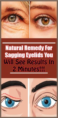 Remedy For Sagging Eyelids You Will See Results In 2 Minutes! Natural Remedy For Sagging Eyelids You Will See Results In 2 Minutes!Natural Remedy For Sagging Eyelids You Will See Results In 2 Minutes! Health Remedies, Home Remedies, Natural Remedies, Natural Health Tips, Health And Beauty Tips, Natural Skin, Natural Herbs, Natural Medicine, Herbal Medicine
