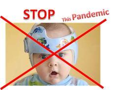 87 Best Alternative To Baby Helmets Plagiocephaly Omt