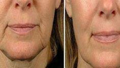 5 remèdes maison pour lutter contre la flaccidité faciale