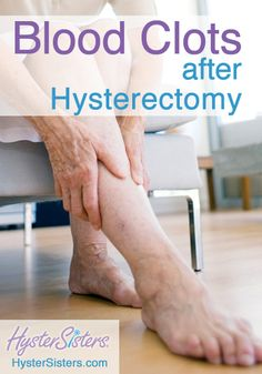 Blood Clots after Hysterectomy | Hysterectomy Recovery HysterSisters Article