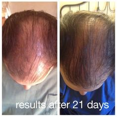 Has your hair changed in the last several years? Have you lost hair recently or are losing hair now? Has your hair color changed? Does your hair look older, dull, brittle or flat? Do you have less volume and thickness? Do you wish your hair were easier to style every day? Do your current hair products deliver on their promises? CLICK http://cindy.mymonat.com to learn more about #Monat #Haircare