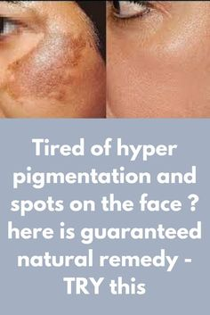Tired of hyper pigmentation and spots on the face ? here is guaranteed natural remedy - TRY this Today I will share best home remedy with easily available ingredients for hyperpigmentation and spots. This remedy includes 2 steps- scrub and face pack. Scrub- Ingredients you will need- 2 tablespoon of powdered sugar 2 tablespoon of yogurt/curd Half fresh lemon Method- 1. Firstly take 2 tablespoons of yogurt and apply it all over your face. …
