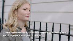 Akne mit Kleresca / BioPhotonik heilen. Mehr Infos dazu im Video.