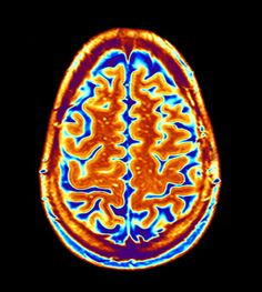 PET Imaging Can Assist In Identifying Alzheimer's Disease Stage - Psychiatry Advisor Autism Diagnosis, Critique Film, France Culture, Brain Art, Brain Diseases, Medical Art, Colors, Finals, Painting Art