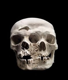Fused skulls on display at the Mutter Museum in Philadelphia.