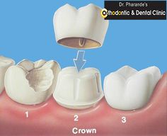 A variety of ‪‎problem‬s can occur with crowns. one of the problem with ‪#‎crowns‬ is that one usually has to drill away good tooth structure in order to make the crown fit properly. As a result, the remaining tooth is fairly weak. That is one reason why you hear of crowns breaking. If you want to more about #Tooth ‪Crown‬.? don't wait. Call Dr. Pharande's Orthodontic & Dental Clinic today !