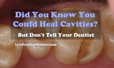 How to heal cavities naturally - Live Free, Live Natural