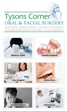 We are specialized in oral & maxillofacial surgical services. Our surgeons are well trained in #DentalImplants #Oral #Bonegrafting #Wisdomteeth #extractions, dental #extractions/exposures, #FacialCosmetics #FacialTrauma #Jaw #Orthognathic surgery, #TMJSurgery botox/fillers, oral pathology, and facial reconstruction.