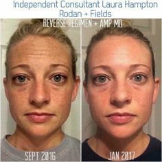 The sun is NOT your BFF!! It does make us happy, warm and down right excited but it also gives us brown spots, dullness, dry skin, wrinkles and speeds up our aging process.  Our Reverse regimen will truly become your BEST FRIEND EVER because it will help fight against your pesky brown spots, uneven skin tone, dullness and even wrinkles. It's my regimen of choice! ☀️☀️☀️☀️☀️☀️☀️☀️☀️☀️☀️☀️☀️☀️☀️☀️#60daymoneybackguarantee