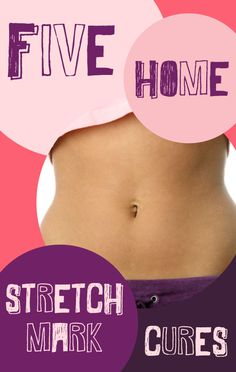 Home Remedies for Stretch Marks --  I say this with respect to all the ladies out there. No amount of creams and oils will get rid of your stretch marks. Let's get real and stop living in fantasyland and shame. You are beautiful, stretch marks and all!