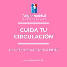💙En ANGIOMEDIKAL GUADALAJARA somos Angiólogos Certificados, miembros activos de la Sociedad Mexicana de Angiología, Cirugía Vascular y Endovascular y del Colegio Jalisciense de Angiología y Cirugía Vascular. #piediabetico #varices #escleroterapia #insuficienciavenosa #linfedema #ulcerasvasculares #trombosis #angiotips #varicesguadalajara #variceszapopan #fleboclinic #clinicadevarices #clinicadepiediabetico #angiologogdl #angiologozapopan #flebitis #angiologoguadalajara #edema #calambres Edema